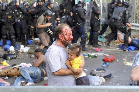 Беженец, раненный во время столкновений с полицией на сербско-венгерской границе