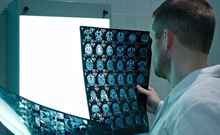 Доктор изучает рентгеновские снимки мозга